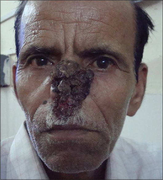 Figure 1: Midfacial destruction in extranodal natural killer/T-cell lymphoma of nasofacial area